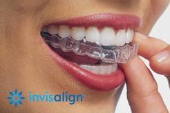 invisalign livingston