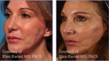 PRP, PRF, Vampire facial, microneedling, collagen, skin, tightening, fine lines, wrinkles, Encino, Cosmetic Injectables Center