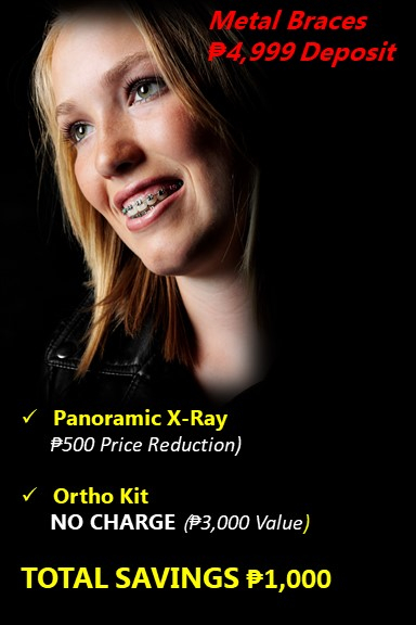 Dental braces deals incl p5000 sm shopping spree choose the price suffering from crowded teeth spacing or even jaw positioning problems dentagem dental can design an orthodontic treatment plan that fits your needs and solutioingenieria Choice Image