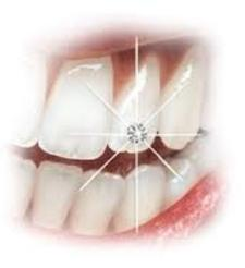 cosmetic dentures with diamond in teeth to symbolize absolute customization available at Armani Dentures