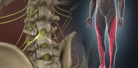 Richboro, PA - Sciatica Pain Relief by Chiropractor & Dr. Sciatic Leg Pain relief local near me in Richboro, PA