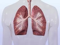 Lung Cancer Lawyer San Francisco CA