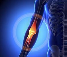 Bucks County, PA - Arm & Leg Pain relief by Chiropractor & Dr. Leg Pain-Arm Pain relief local near me in Bucks County, PA
