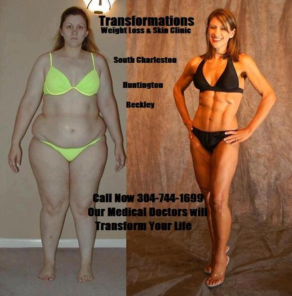 weight loss clinics charleston wv