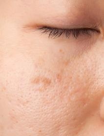 Woman with dermatology treatment issues in Homosassa, FL
