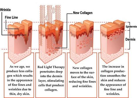 Red light therapy about red light on yourself in a prescribed way in order to make you look younger heal faster reduce pain and bring overall balance to your energy and solutioingenieria Gallery