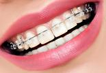 how to tell if you need braces south hills pa