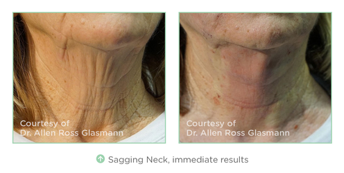 NovaThread Immediate Results for Sagging Neck