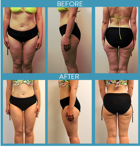 Slimming, Thightening And Detoxifying Body Wraps, Weight Loss and Cellulite Reduction Body Wraps ...