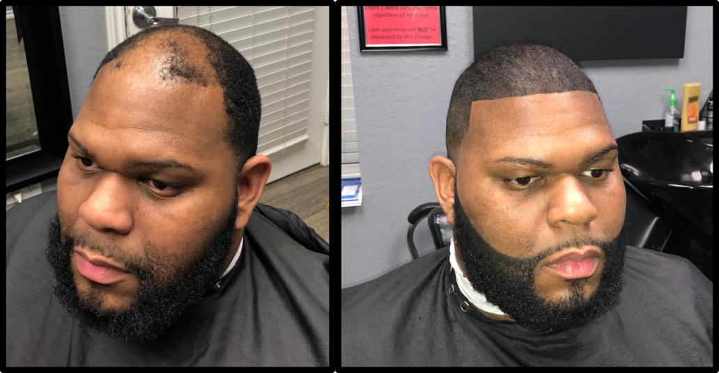 Custom Hair Unit Man Weave In Houston Tx
