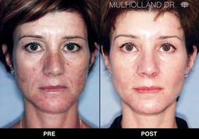 Bella Derma Aesthetics, LLC - Laser Skin Tightening, Hair
