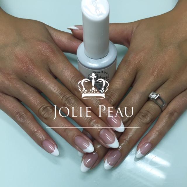 Hair Removal - Jolie Peau Fine Aesthetics - Calgary, Ab