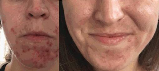 acne before herbal green peel