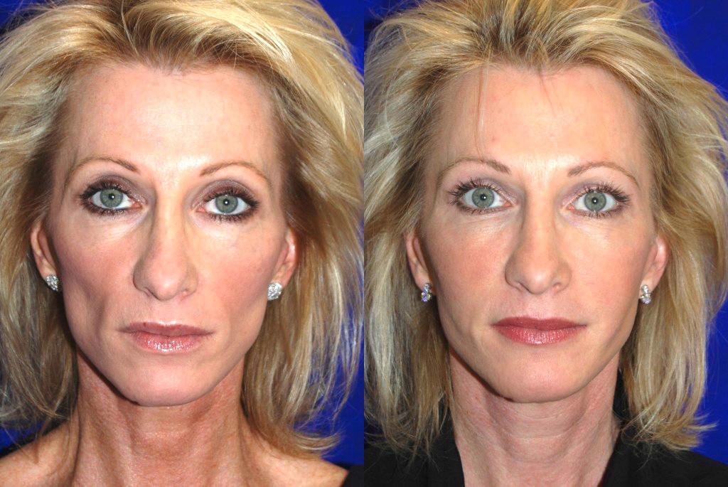 Brows Cosmetic Injectables Center