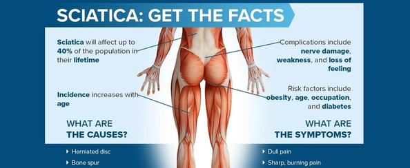 Yardley, PA - Sciatica Pain Relief by Chiropractor & Dr. Sciatic Leg Pain relief local near me in Yardley, PA