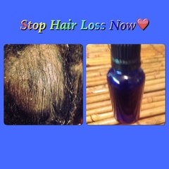 H2BN  Yamassee Ancient Stop Hair Loss Magic Potion Now On Sale