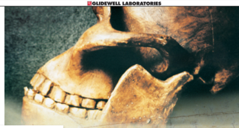 Teeth wear on pre historic ancestors