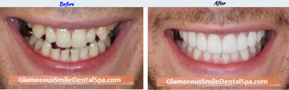 Smile Makeover – Before-After