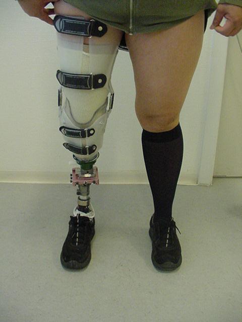 Prosthetic Socket Design