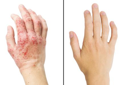 Marli's Eczema Body Butter Before & After