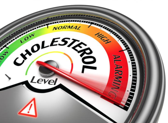 Cholesterol Levels - Dr. Joel Wallach