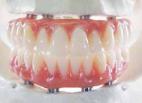 Prothèse fixe sur implants fix-on-4 Brossard-Laprairie, fixed denture on implants fix-on-4 Brossard-Laprairie