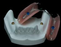 prothèse partielle sur implants Brossard-Laprairie,partial denture on implants Brossard-Laprairie