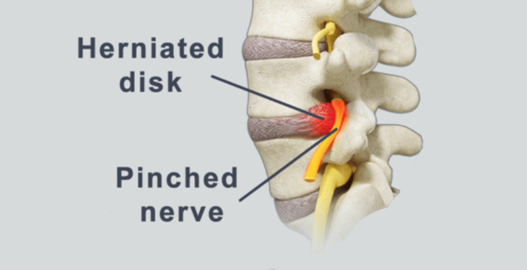 Pinched Sciatic Nerve - Dr. Joel Wallach