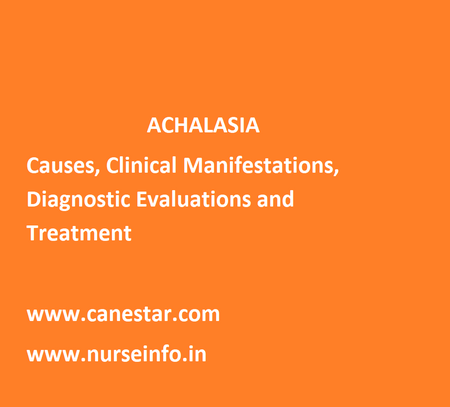 ACHALASIA - Causes, Clinical Manifestations, Diagnostic Evaluations and Treatment
