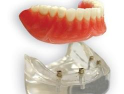 Prothèse Dentaire Sur Implants Michel Puertas Denturologiste Brossard-Laprairie, Denture On Implants Michel Puertas Denturologiste Brossard-Laprairie