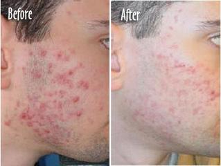 Acne Scar Management Philadelphia