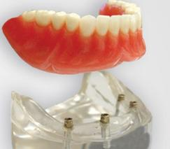 """Dental complete lower denture on 4 dental implants Brossard-Laprairie"