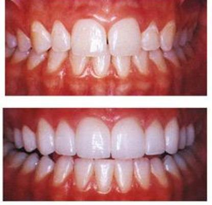 Porcelain Veneers Are Very Thin Often Less Than 05 Mm Thick Almost Like A Contact Lens There Minimal Preparation Such As The Example Shown