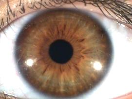 A typical Eyeology slide