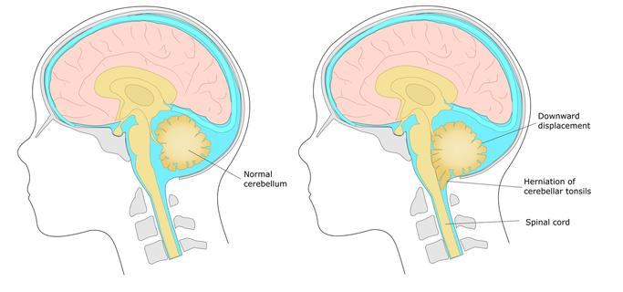 Chiari Malformation Diagram