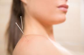 Acupuncture reduces opiod use after surgery