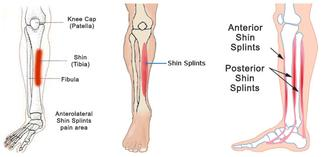 Shin Splints Treatment by Podiatrist
