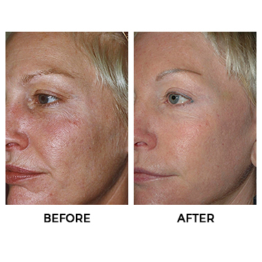Fractional Co2 Laser Rosacea Treatment Acne Scar Removal
