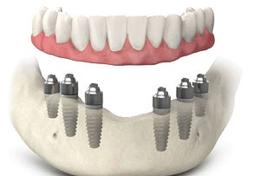 Prothèse Dentaire Sur Implants Fixe Fix-On-6 Brossard-Laprairie