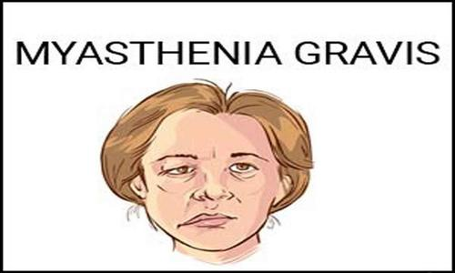 Myasthenia Gravis – Causes and Risk Factors, Pathophysiology, Clinical Manifestations and Management