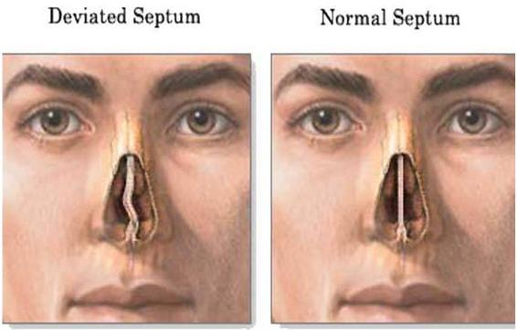 DEVIATED NASAL SEPTUM - Causes and Risk Factors, pathophysiology, clinical manifestations, diagnostic evaluations, medical management, surgical management and prevention