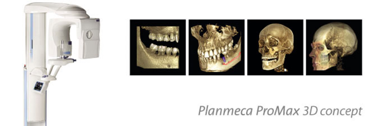 Planmeca ProMax 3D Clinique Implantologie Dentaire Brossard