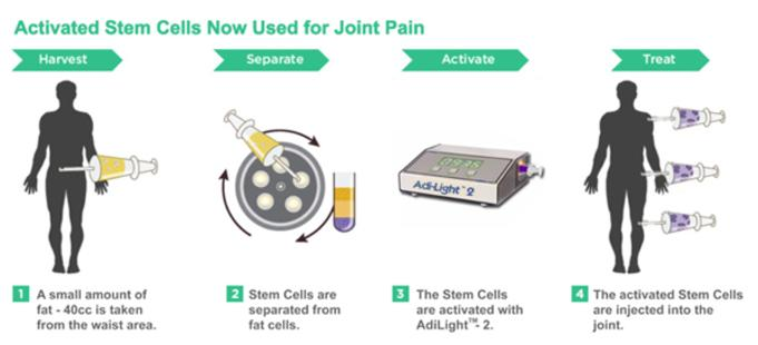 prp for joint pain