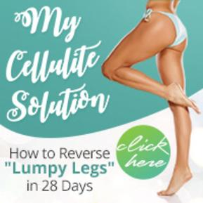 Shelby NC Cellulite Solution