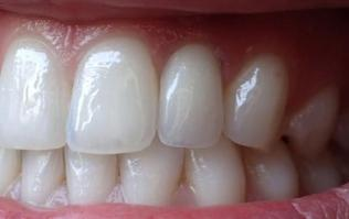 Fixed Denture On Implants Michel Puertas Denturologiste Brossard-Laprairie