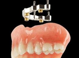 Prothèse Dentaire Sur Implants Avec Barre Michel Puertas Denturologiste Brossard-Laprairie, Denture On Implants With Bar Michel Puertas Denturologiste Brossard-Laprairie