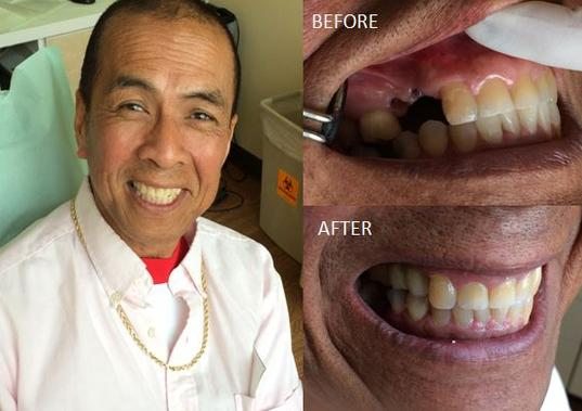 Dental Implant Beverly Hills Dr Rashti Dental Implant Beverly Hills Dr Rashti