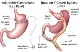 Revision of previous bariatric surgery