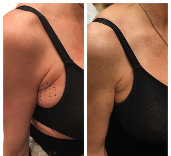 Kybella Injections For Double Chin