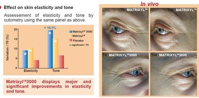 Matrixyl 3000, Pure Radiance Miracle Multiple Peptide Serum Pure Radiance char of hyal Pure Radiance